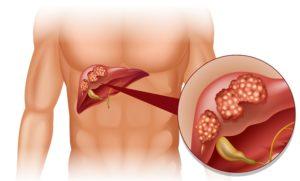 liver transplant 1