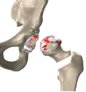 partial hip replacement