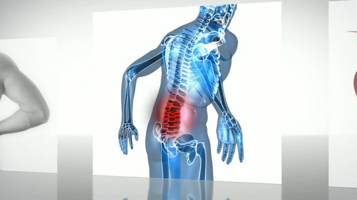 spinal surgery