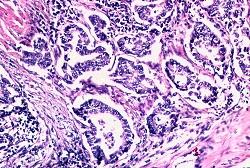 Acinar adenocarcinoma