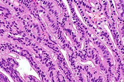 Ductal adenocarcinoma