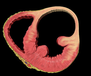 Heart_aneurysm
