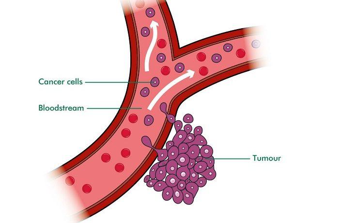 bone cancer