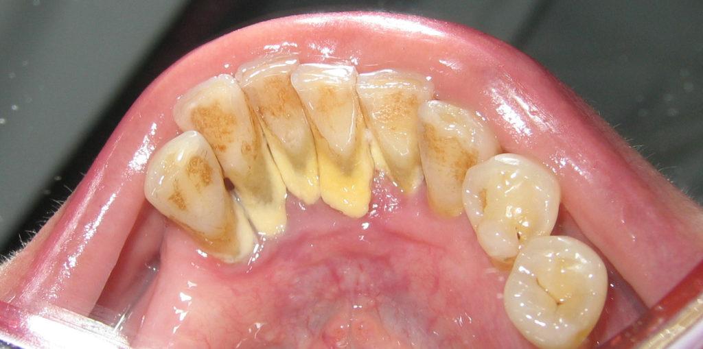 remove dental plaque naturally