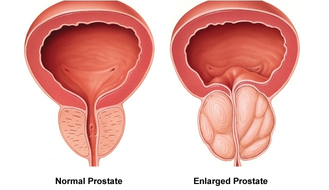 prostate enlargement cost in india