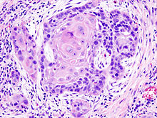 squamous_cell_cancer
