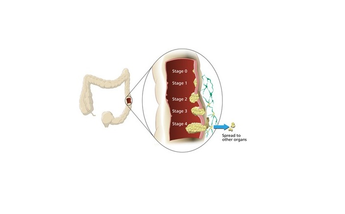 colon cancer treatment cost in india