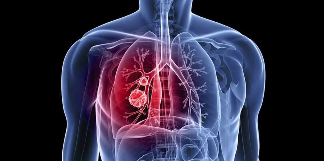 lung cancer treatment cost india
