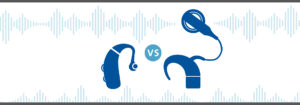 hearing aids vs cochlear implants