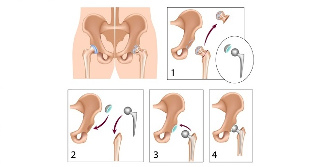 hip replacement image