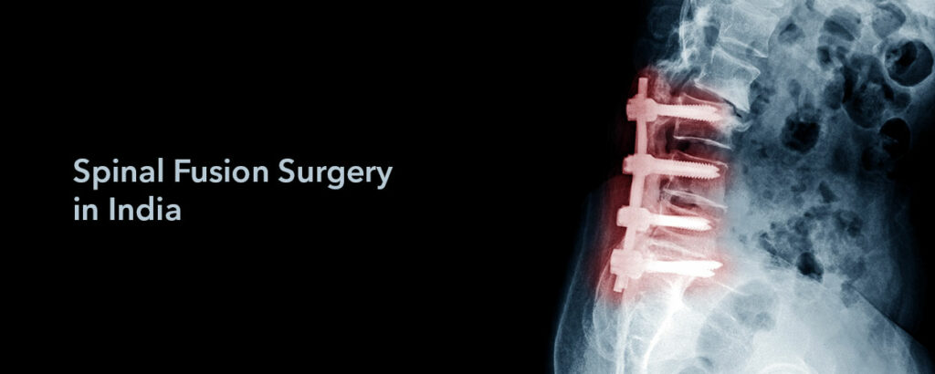 spinal fusion surgery for back pain