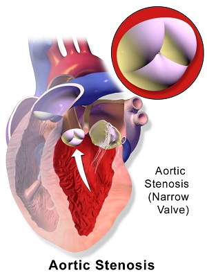 aortic stenosis treatment