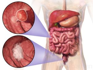 Colon Cancer Treatment Cost In India Colon Cancer Surgery Cost In India