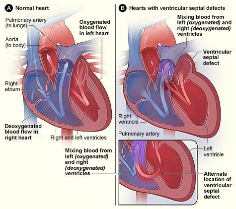congenital heart defect treatment