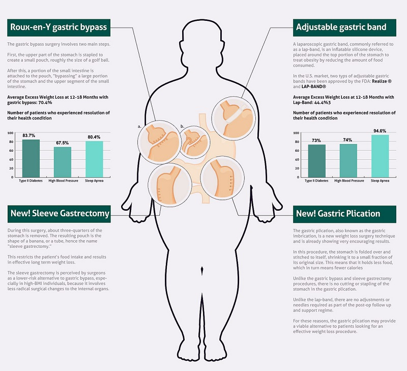 bariatric surgery infographics