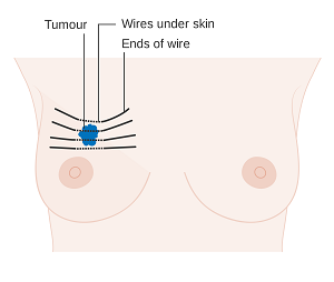 breast cancer treatment in India