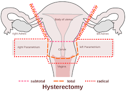 Hysterectomy in India