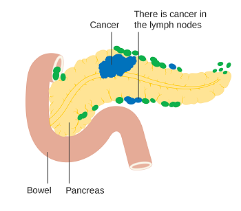 Pancreatic Cancer Treatment Cost India, Pancreatic Surgery