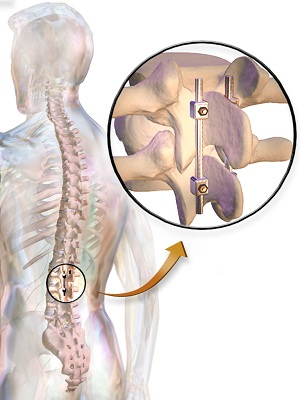 spinal fusion treatment