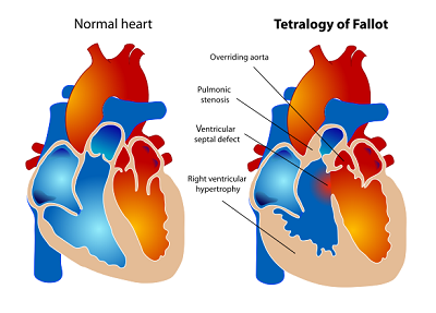 Tetralogy of Fallot Treatment