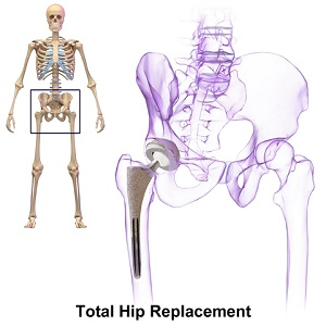 hip replacement treatment