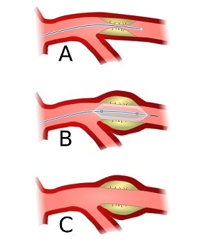 angioplasty in India