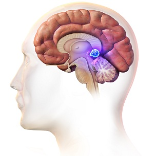 brain tumor treatment in India