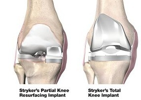 knee replacement india