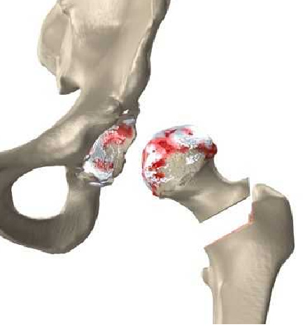hip replacement partial