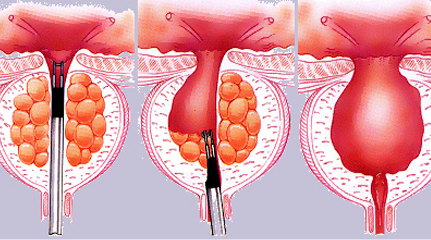 TURP Surgery in India