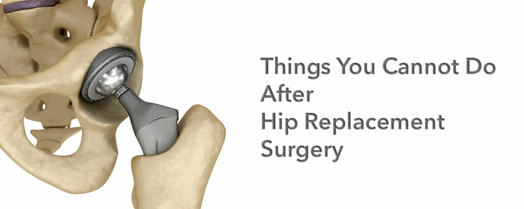 Knee Injury doctor in Lahore, Joint Replacement Surgery In Pakistan, Surgeons for sports injuries, ACL Injury doctor in Lahore, Hip Replacement Surgeon in Pakistan