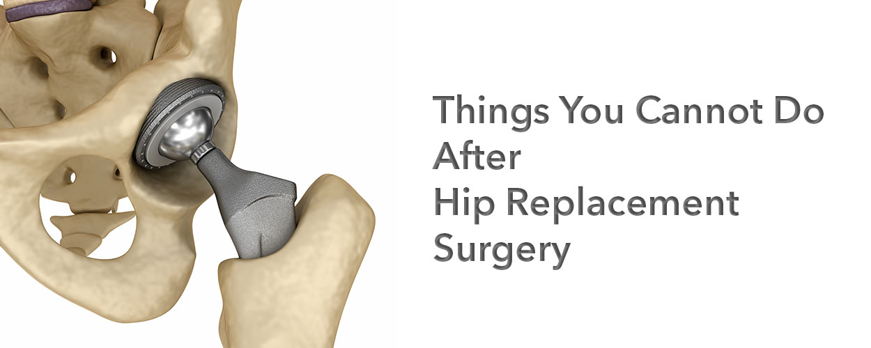 Things You Cannot Do After Hip Replacement Surgery