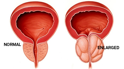 Enlarged Prostate Treatment in India