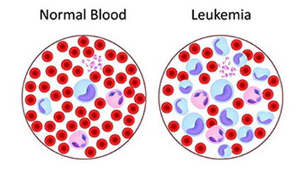 Leukemia Treatment Cost in India