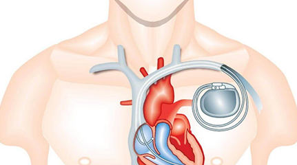 Pacemaker Implantation Price in India