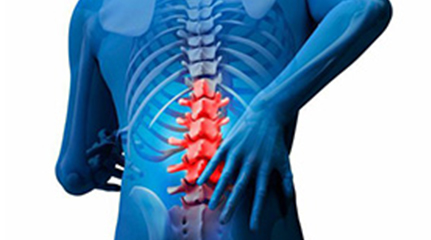 Spinal Fusion Surgery in India