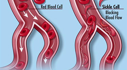 Sickle Cell Anemia Treatment in India