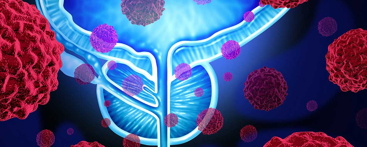 Bladder Cancer Treatment Cost in India