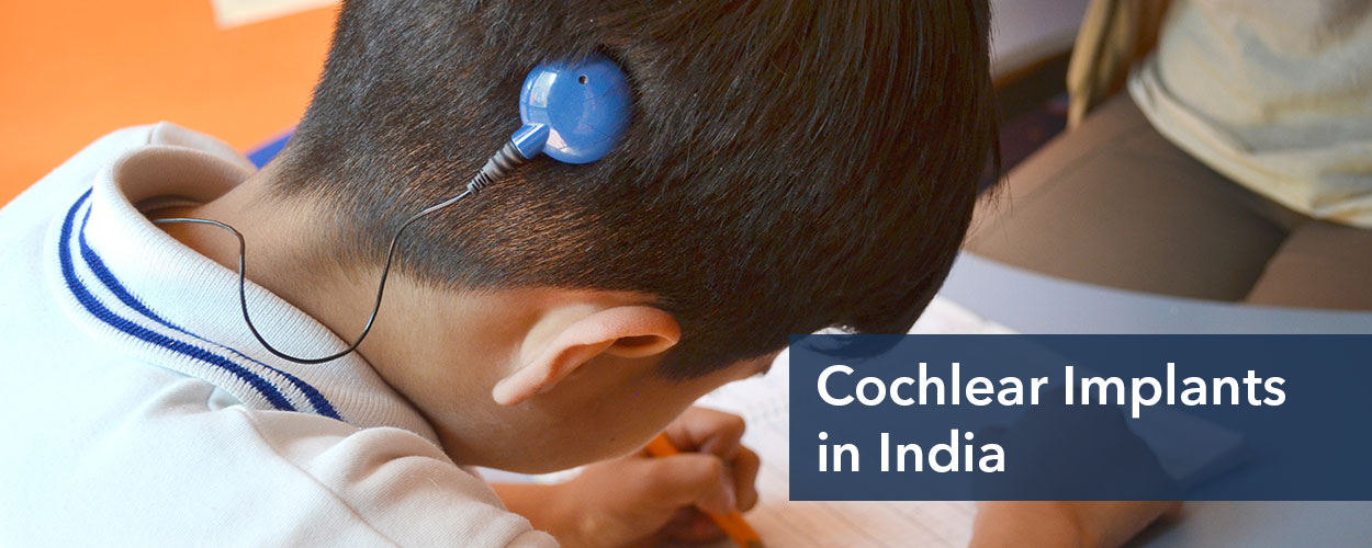 Cochlear Implant in India