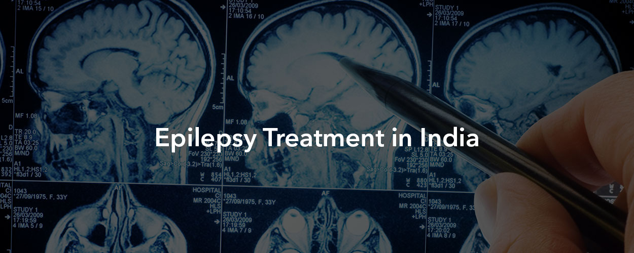 Epilepsy Treatment in India