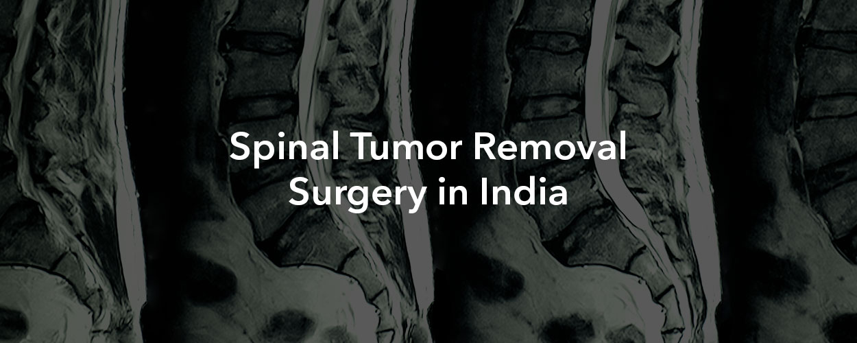 Spinal Tumor Removal Surgery in India