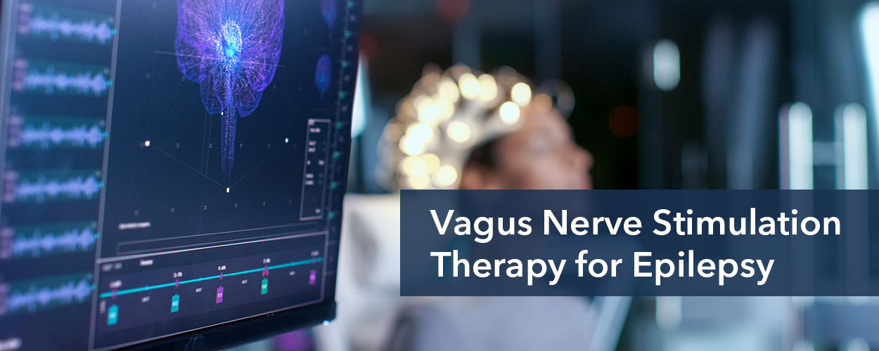 VNS Therapy for seizure control