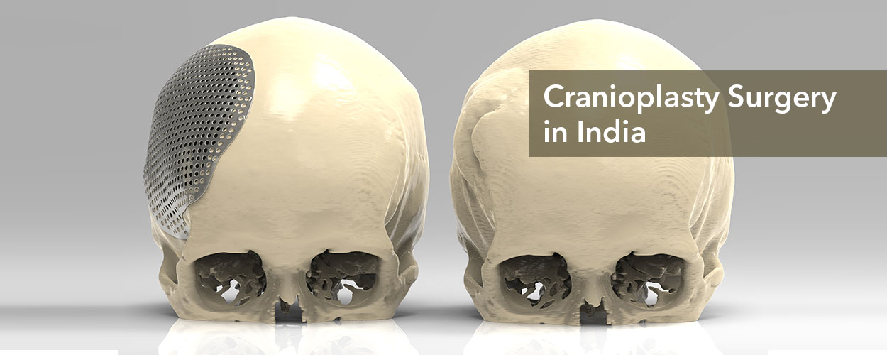 Cranioplasty in India