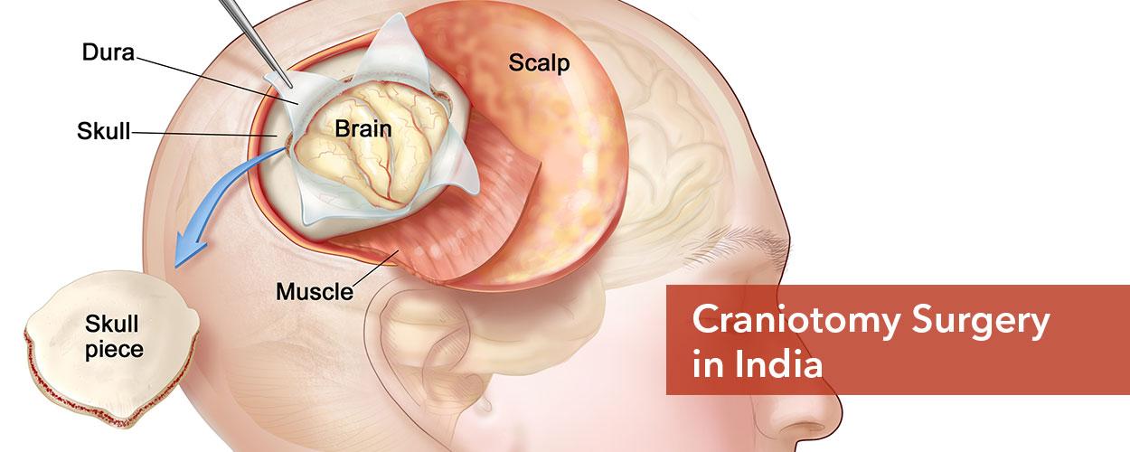 Craniotomy in India