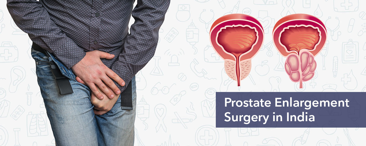 Prostate Enlargement Treatment in India
