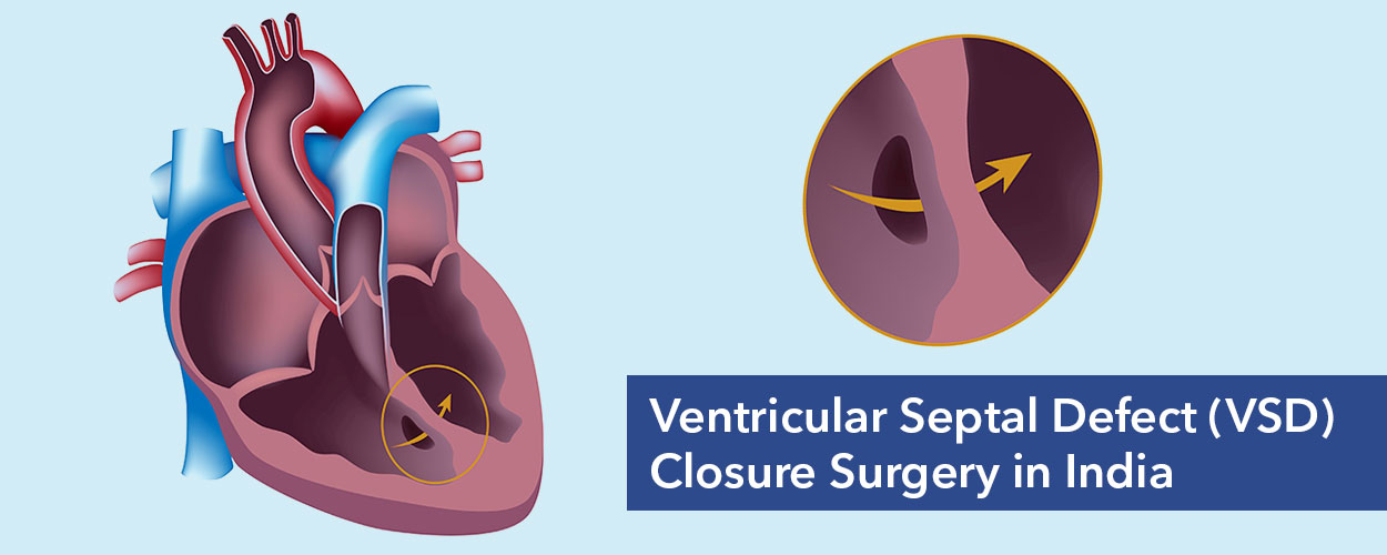 VSD Closure Surgery