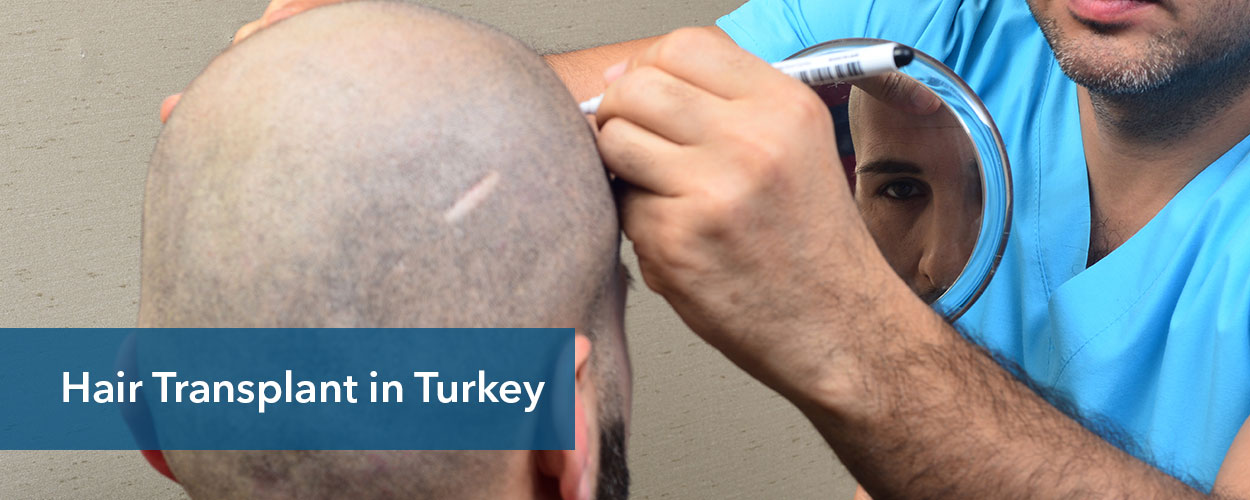 Best Hair Transplant in Turkey