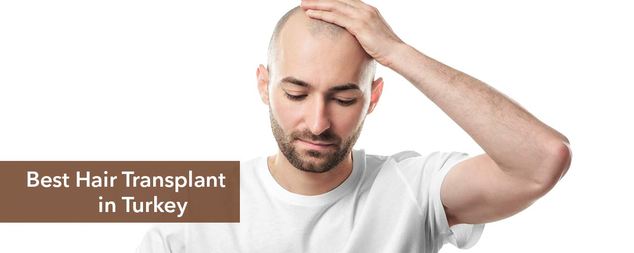 5 Best Hair Transplant Clinics in Turkey
