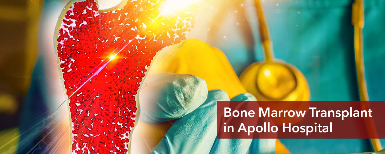 Bone Marrow Transplantation Cost in Apollo