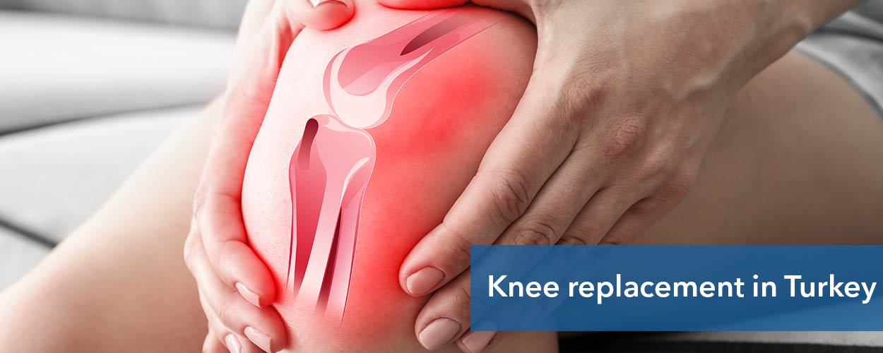 Knee replacement in Turkey